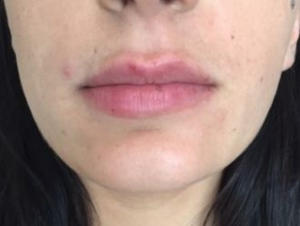 Augmentation des lèvres-636720