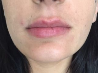 lèvre fine après