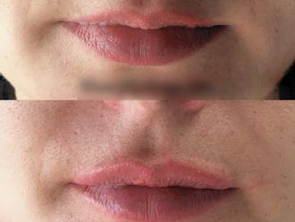Augmentation des lèvres - 795811