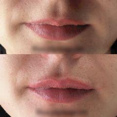 Augmentation des lèvres - Dr Bertrand Joly