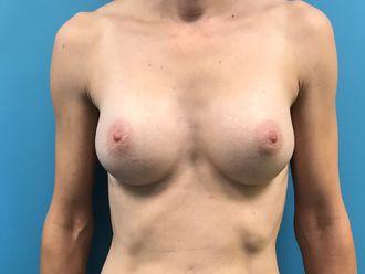 Augmentation mammaire - 633224