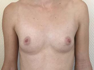 Augmentation mammaire - 633225