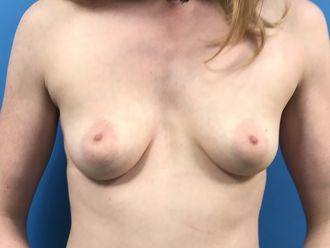 Augmentation mammaire - 633226