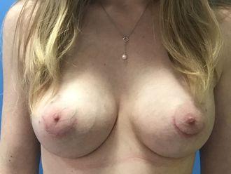 Augmentation mammaire - 633227