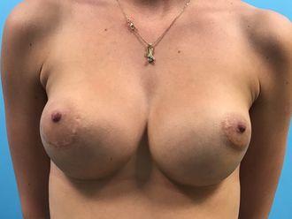 Augmentation mammaire - 633238