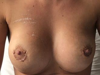 Augmentation mammaire - 633239