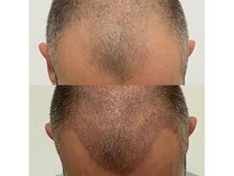 Greffe de cheveux - 663142