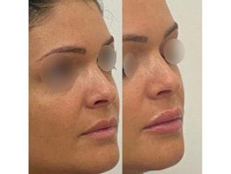 Augmentation des lèvres-663152