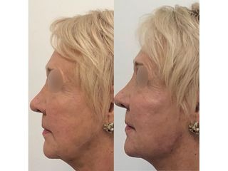 Injection radiesse ovale du visage-jawline contouring - Doctor and Co PARIS
