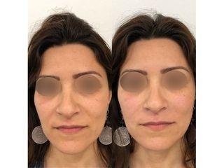Injection acide hyaluronique sillons naso géniens+ plis d'amertumes - Doctor and Co PARIS