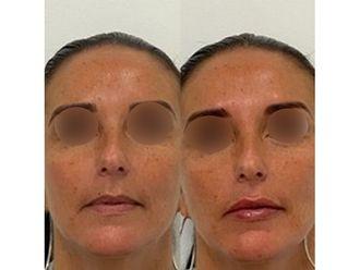 Augmentation des lèvres-663159