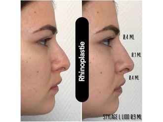 Rhinoplastie médicale-648398