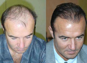 Avant après Microgreffes de cheveux