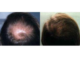 Microgreffes de cheveux réalisées dans nos centres HairClinic
