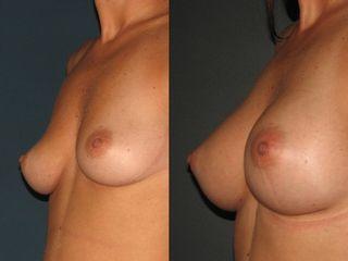 redim-photo-d-augmentation-mammaire-avant-et-apres-l-intervention-par-le-dr-niforos-a-lyon-ootoj