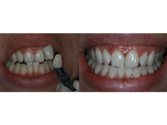 Blanchiment des dents-548964