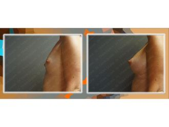 Augmentation mammaire - 689633