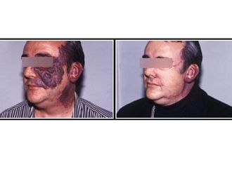 Dermatologie-543416