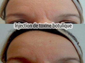 Botox-569848