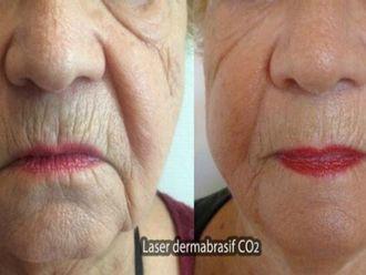 Laser dermatologique-569849