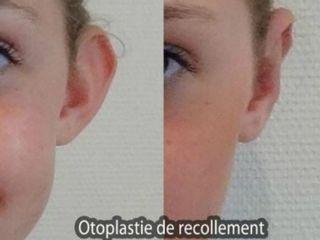 Avant après Otoplastie