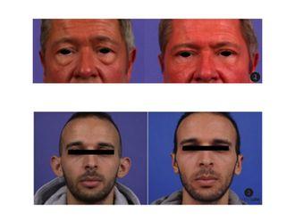 Chirurgie maxillo-faciale - 499968