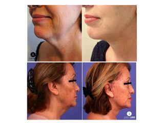 Avant après Lifting cervico-facial