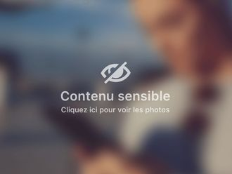 Gynécomastie-594704