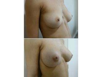 Augmentation mammaire - 630232