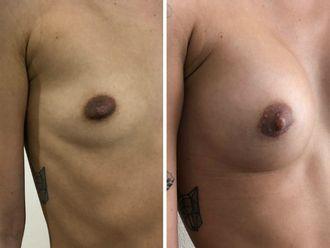 Augmentation mammaire - 630233