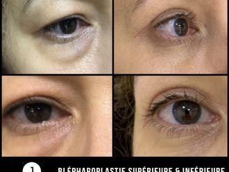 Blépharoplastie-737995