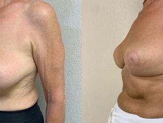 Réduction mammaire - 800205