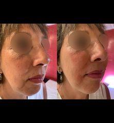 Acide hyaluronique - Dr Guy Lustig