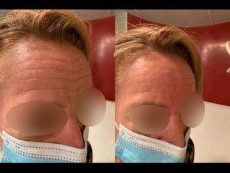 Traitement anti-acné-739005