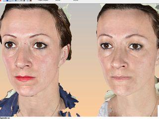 Images en 3D de votre visage