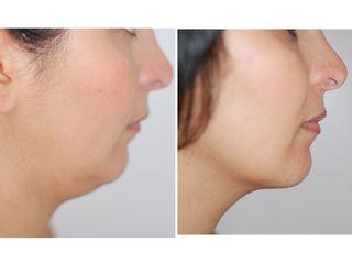 Avant après Liposucicon douce du double menton et de l'ovale du visage