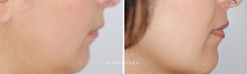 Liposucicon du double menton