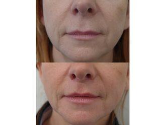 Augmentation des lèvres-505343