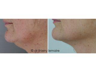 Avant après Liposuccion douce au niveau du Double Menton, des bajoues et de l'ovale du visage