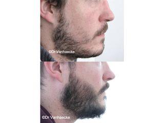 Barbe et moustache - Dr Eric Vanhaecke