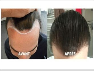 Greffe de cheveux-565068