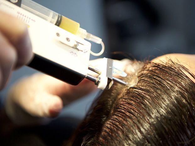 Méthode Macro Greffe De Cheveux