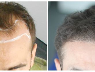 Greffe de cheveux-794339