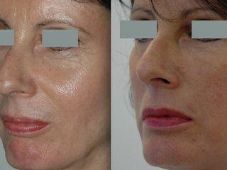 Avant après Lifting Medio facial ou vertical antérieur  (ou concentrique malar lift)