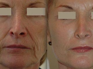 Avant après Lifting cervico-facial + Lifting medio-facial+ Lifting Temporal plus blépharoplasties