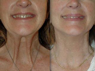 Avant après Botox cou