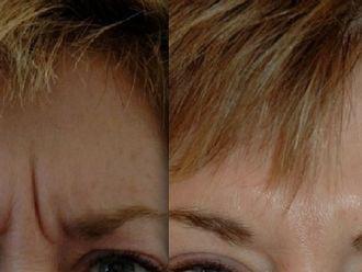 Botox-523478