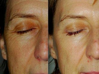 Botox-523479