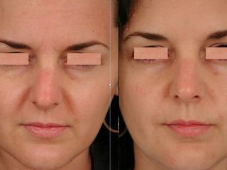 Avant après Botox visage