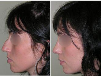 Chirurgie Esthétique-508674